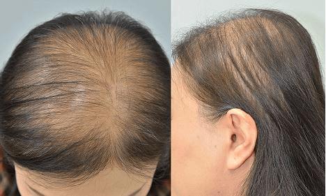 Alopecia - O que é? Quais os tipos, as causas e os sintomas ...