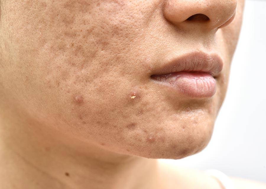 cicatrizar acne