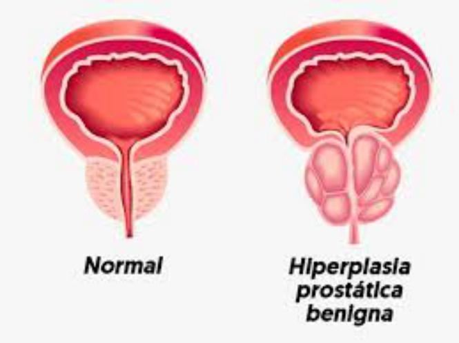 Tansulosina para hiperplasia prostatica benigna