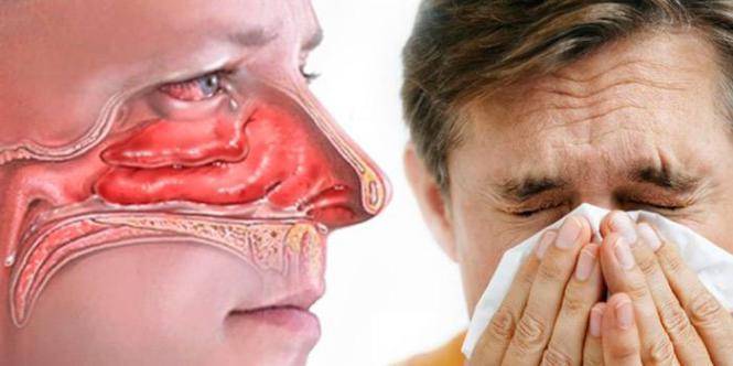 Levocetirizina para rinite alérgica