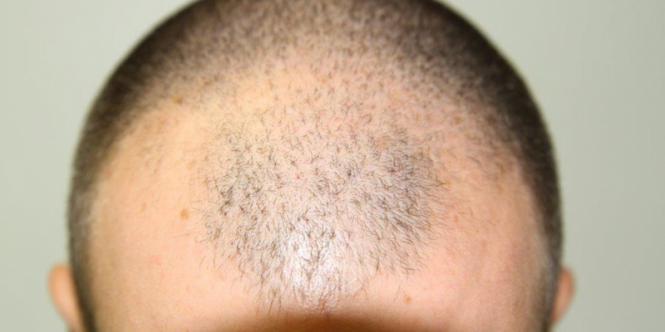 Eximia para queda de cabelo