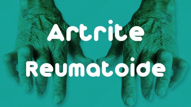 Motore para artrite reumatoide