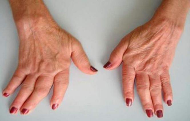 Motore para artrite reumatoide 2