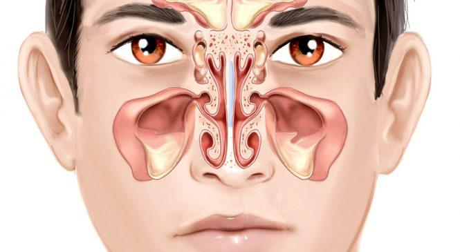 Naridrin para congestao nasal