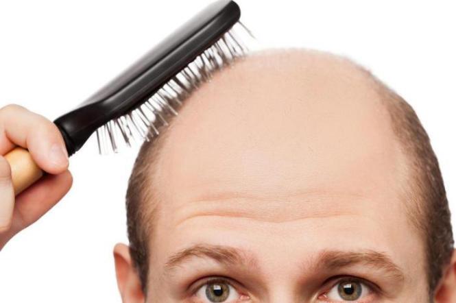 Pant 50 para alopecia androgenetica