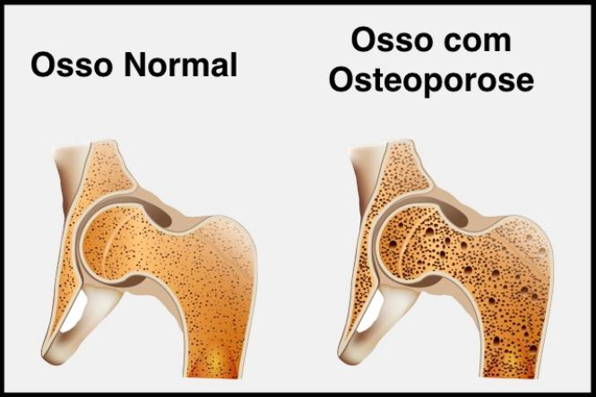 Prosso para osteoporose