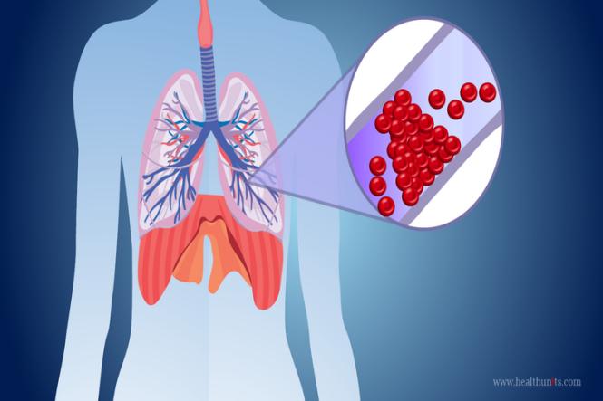 Xarelto para embolia pulmonar