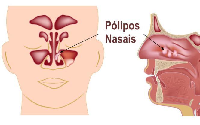 Budesonida para polipos nasais