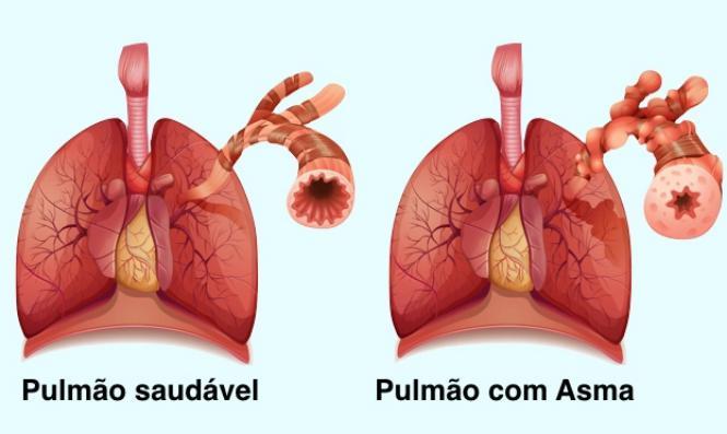 Aerolin para asma