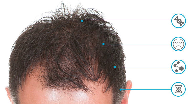 trinoxidil queda de cabelo